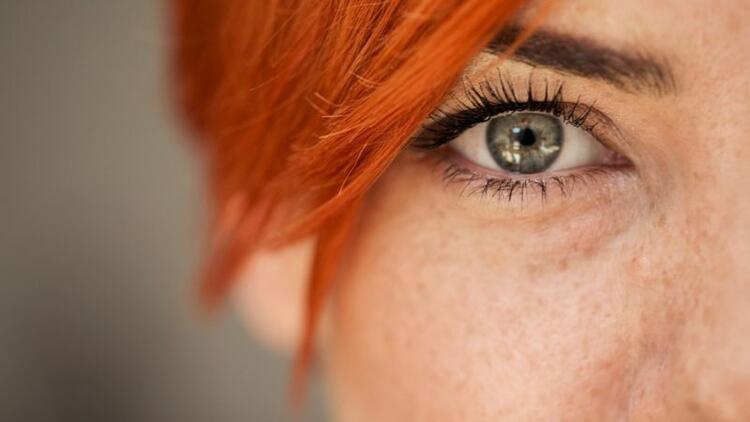 Göz kapağı estetiğiyle daha genç görünmek mümkün!