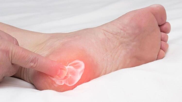 Topuk dikeni neden olur ve nasıl tedavi edilir?