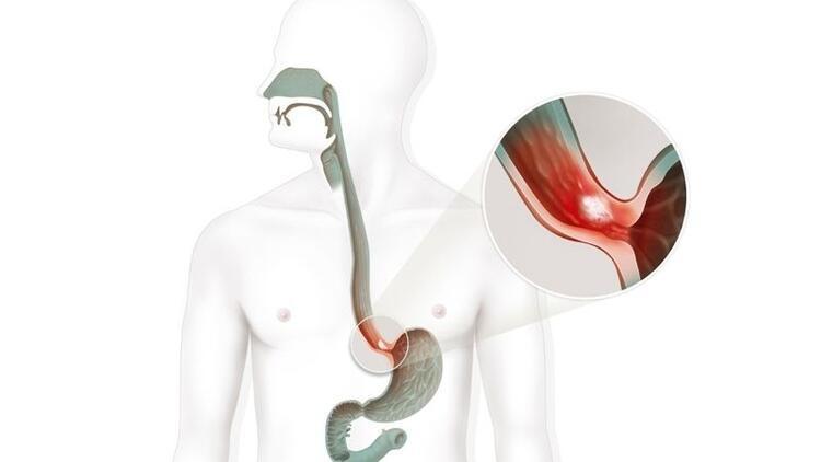 Tüp mide ameliyatıyla obezite tedavisi