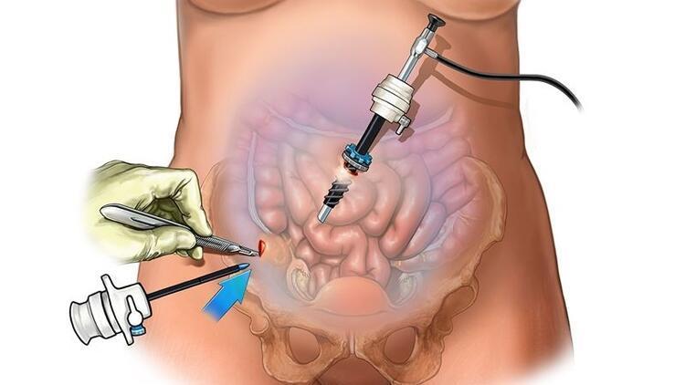 Laparoskopi nedir? Laparoskopi nasıl yapılır?