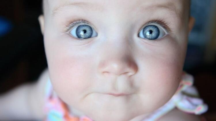 İri gözlü bebeklere dikkat! Risk altında olabilirler