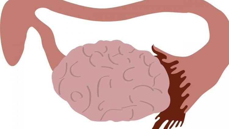 Miyom (myoma uteri) nedir? Miyomlar neden gelişir?