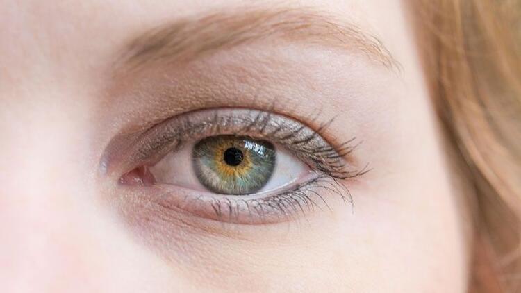 İri gözler tiroit hastalığı habercisi olabiliyor!