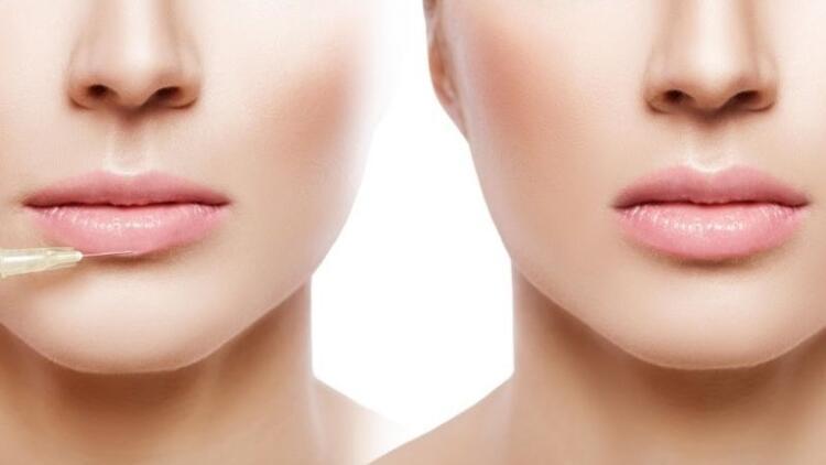 Güzelliğin simgesi dudaklar!
