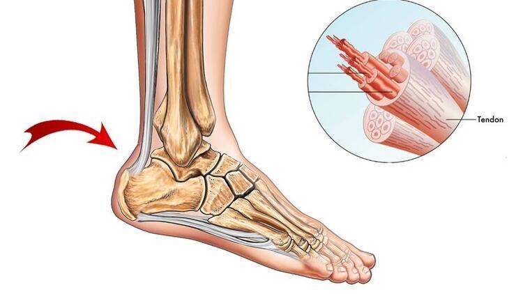 Aşil tendon yaralanması nasıl tedavi edilir?