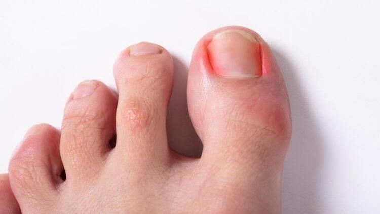 Tırnak batması neden olur? Nasıl tedavi edilir?