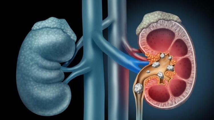 Ürolojik kanserlerin geç teşhisinde en önemli neden utanma