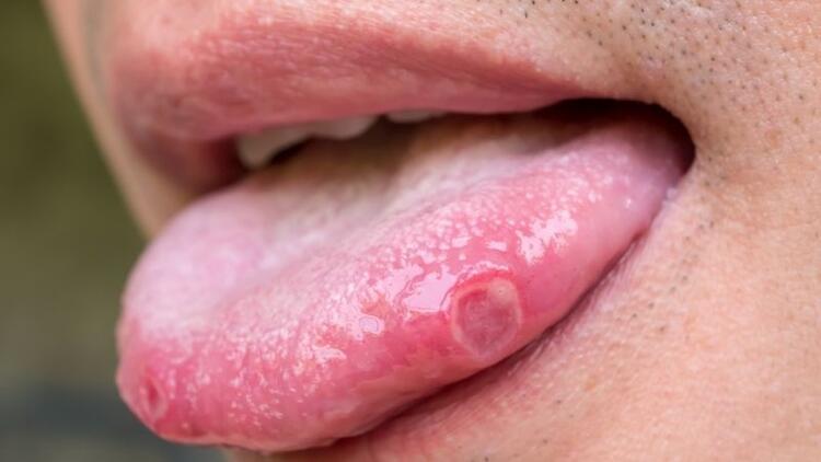 Ağız içi yaraları dil kanserinin habercisi olabilir mi?