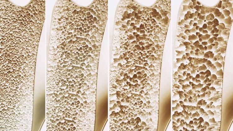 Kemik erimesi neden olur, nasıl önlenir?