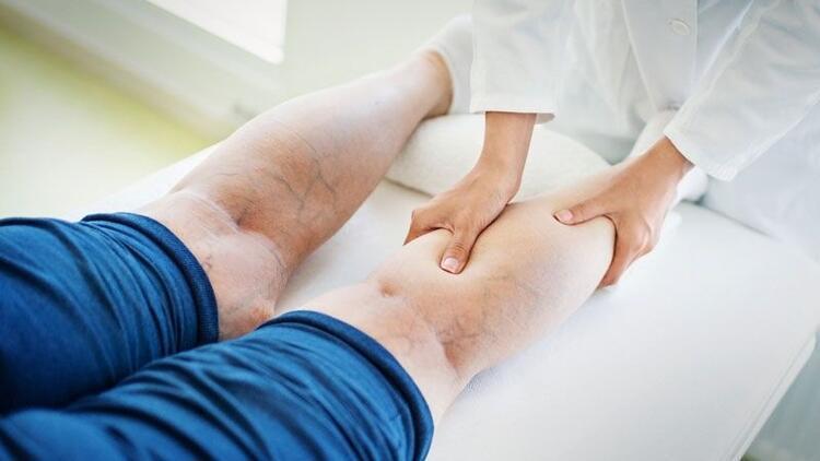 Bacaklarda varis neden olur, nasıl tedavi edilir?