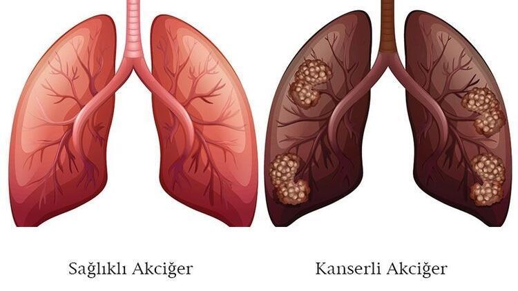 Akciğer kanseri evreleri yaşam süresi ve tedavisi