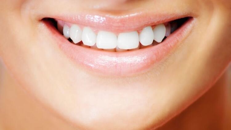 Gülüş estetiğiyle gülümsemenizi güzelleştirin