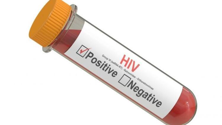 Aids hakkında merak ettiğiniz tüm soruların yanıtları
