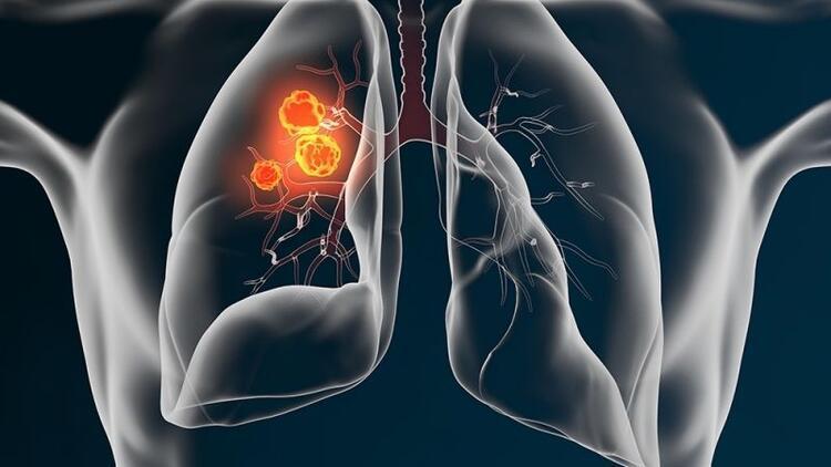 Akciğer kanseri türleri ve türe göre akciğer kanseri tedavisi