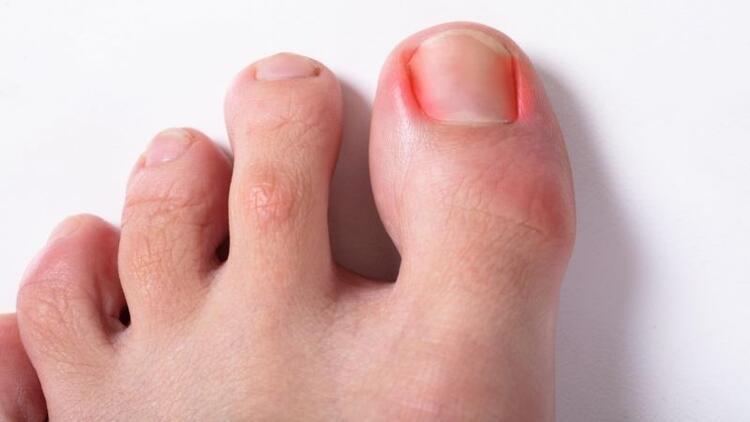 Tırnak batması tedavisi nasıl yapılır?