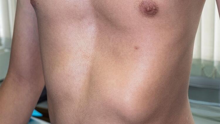 Kunduracı göğsü nedir? Dolgu estetiği ile tedavisi mümkün mü?