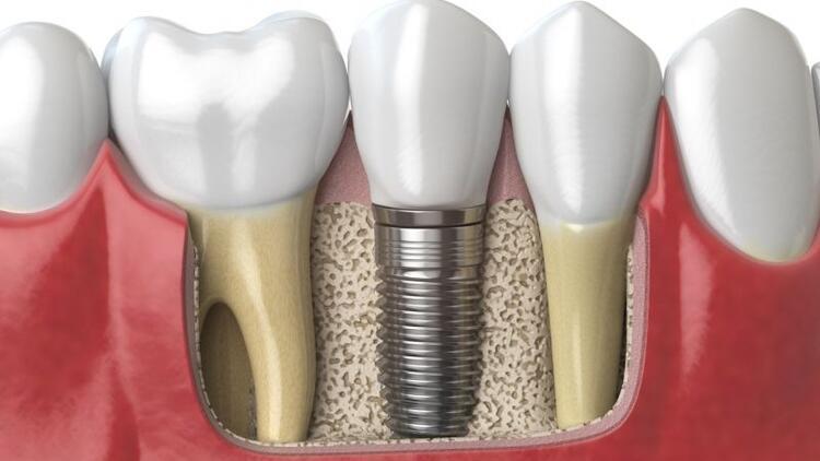 Ağrısız implant mümkün mü?