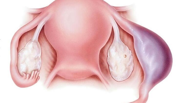 Dış gebelik nedir? Dış gebelik neden olur?