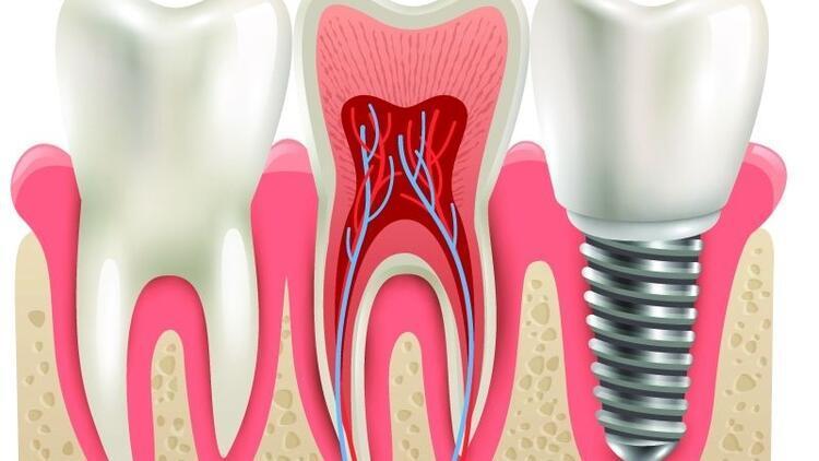 Diş implantında 24 saatlik uygulama