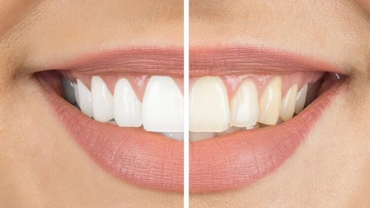 Diş beyazlatma dişin yapısına zarar verir mi?