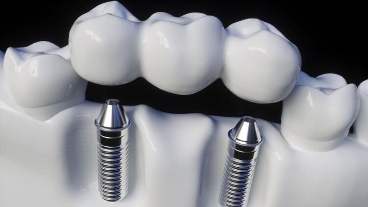 Diş implantı zor mu?