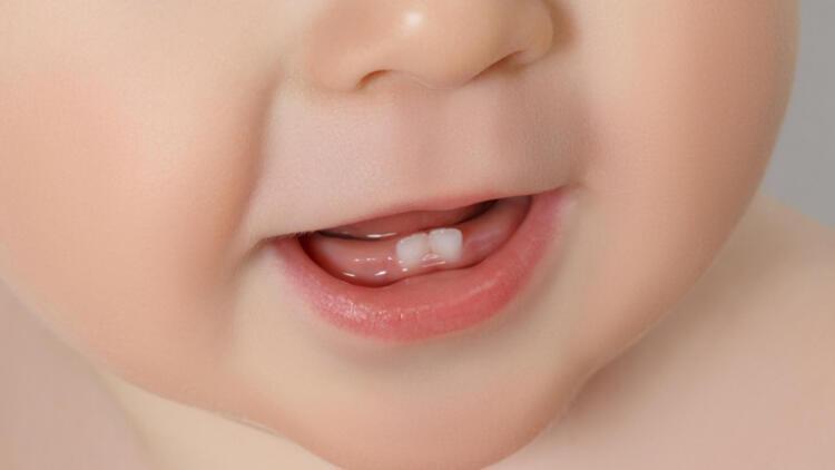 Bebeklerde ağız hijyeni neden önemli?