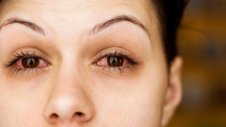 Gözleriniz kaşınıyor ve kızarıyorsa göz alerjiniz olabilir