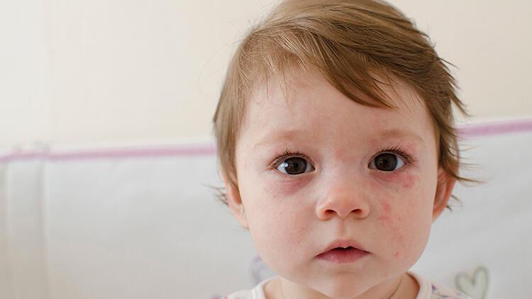 Bebeklerde ve çocuklarda isilik neden olur? İsilik oluşumu nasıl engellenir?