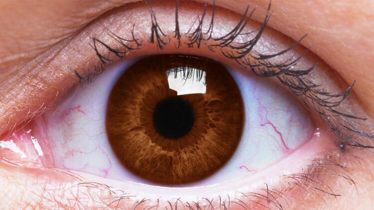 Gözleri sık ovalamak o hastalığa davetiye çıkarıyor