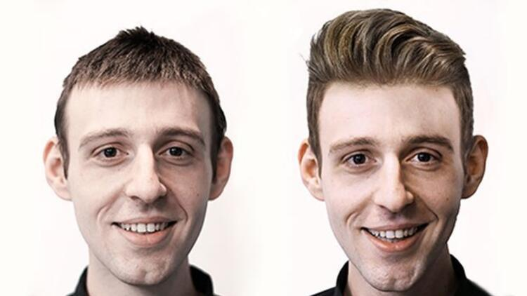 Protez saç hakkında merak edilenler