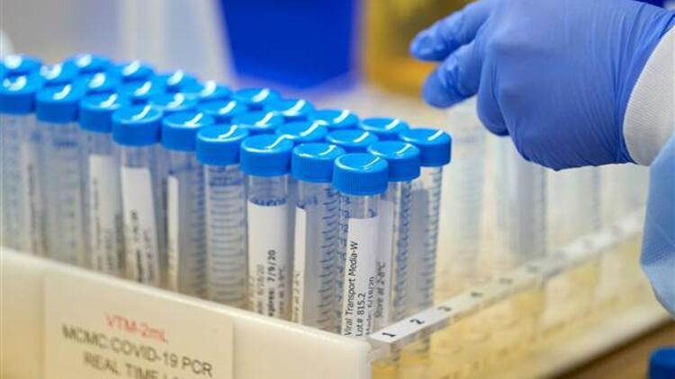 İkinci kez koronavirüse yakalanma sebebi nedir İşte ABDde yapılan araştırmanın detayları