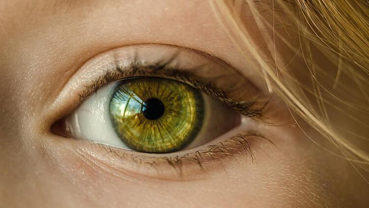 Göz akında sararma ciddi hastalıkların habercisi olabilir
