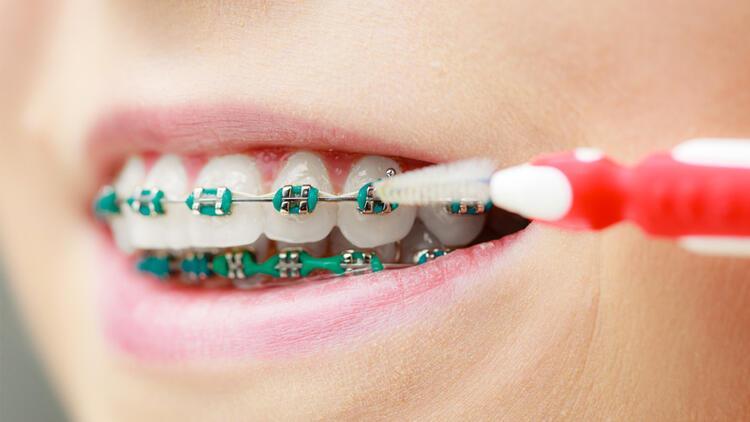 Diş teli olanlar ağız bakımı için nelere dikkat etmeli?