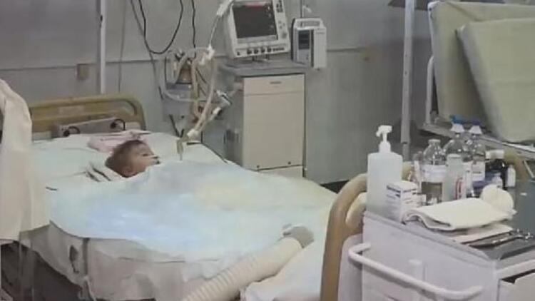 2 yaşındaki bebek doğum gününde köpek saldırısına uğradı