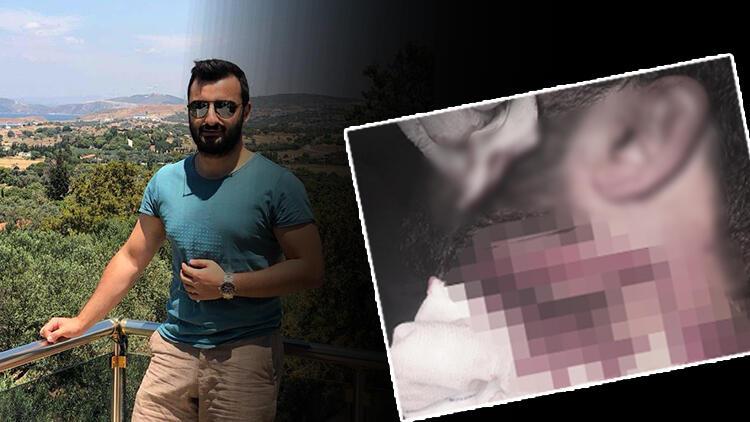 Son dakika... Doktor Kadir Songür'ü jiletle yaralamıştı! 20 yıl hapis, indirim uygulanmadı