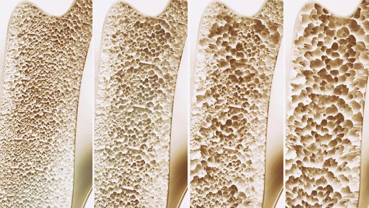 Kemik erimesi neden olur? Kemik erimesine karşı 6 etkili önlem!