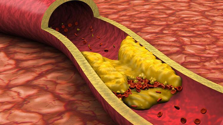 Bol bol tüketin! Bu besinler hem vücudu hem de damarları tertemiz yapıyor…