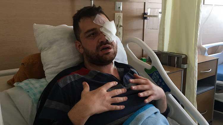 Avukatı gözünden bıçaklamıştı! Flaş gelişme