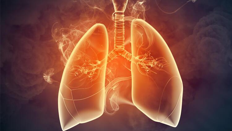 Pandemi döneminde akciğer kanseri vakaları arttı