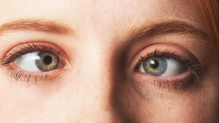 Şaşılıkta erken tedavi göz sağlığı için oldukça önemli