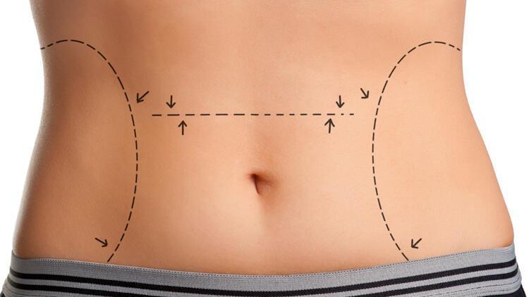 Karın germe (abdominoplasti) ameliyatı nedir?