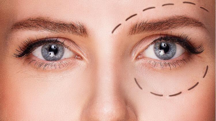 Göz Çevresi Estetiği Nasıl Yapılır?