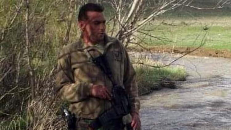Kayseri'de sahte içkiden zehirlenen kişi öldü