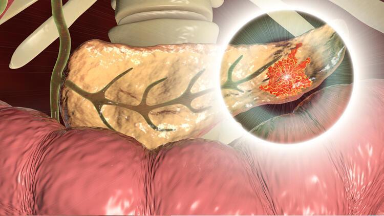 Pankreas kanseri hem sinsi hem hızlı ilerliyor!