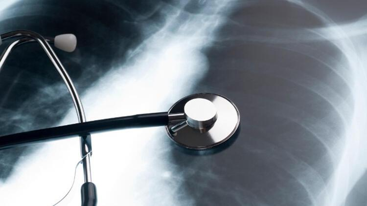 En fazla rastlanan akciğer hastalığı! Neden olan en önemli etken ise...