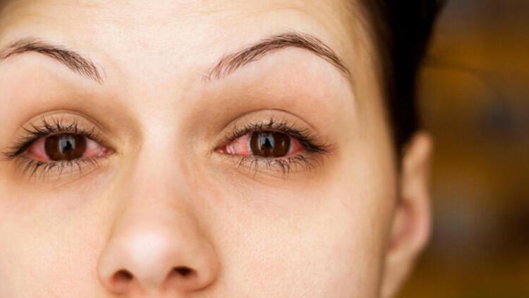 Göz kuruluğu yaşayanlar için önemli uyarı! Koronavirüs riski oluşturabilir