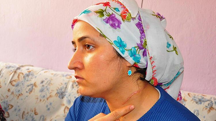 Eşi tarafından boğazı kesilen Esra Oymak: Hayatım karardı