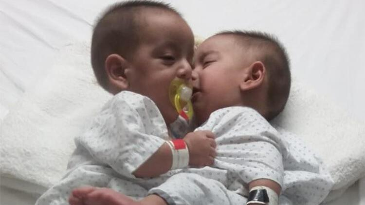 Pakistan'da 9 aylık yapışık ikizler ameliyatla ayrıldı