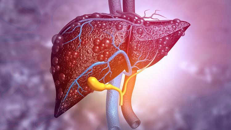 Karaciğer yağlanması neden olur, nasıl tedavi edilir?