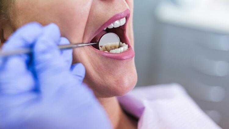 Pandemi Döneminde Diş Kaybı